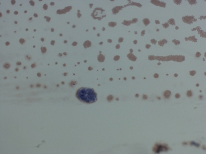 Carcinoma1