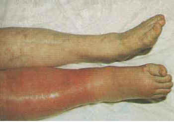 example-of-dvt
