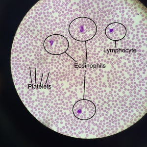 Eosinophil4 - annotated
